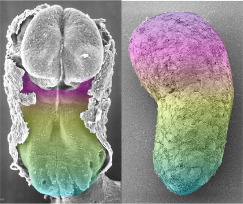 human embryo and human gastruloid